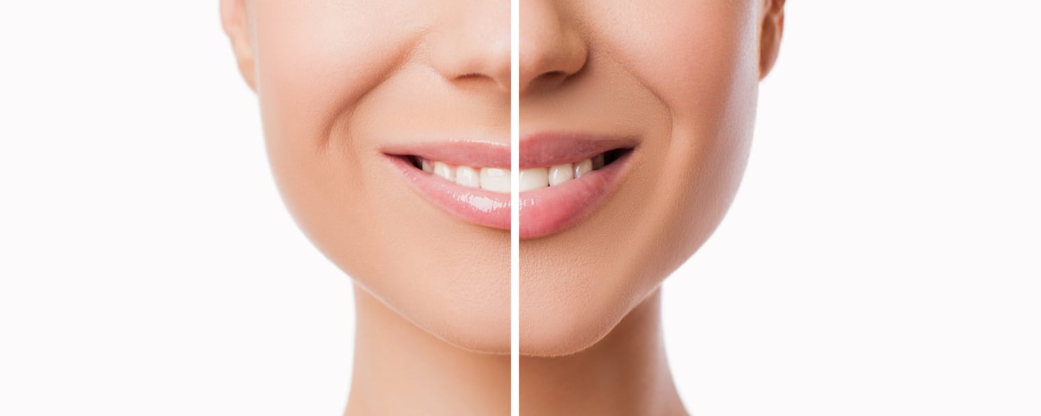 Cosmetic Fillers Rockford IL